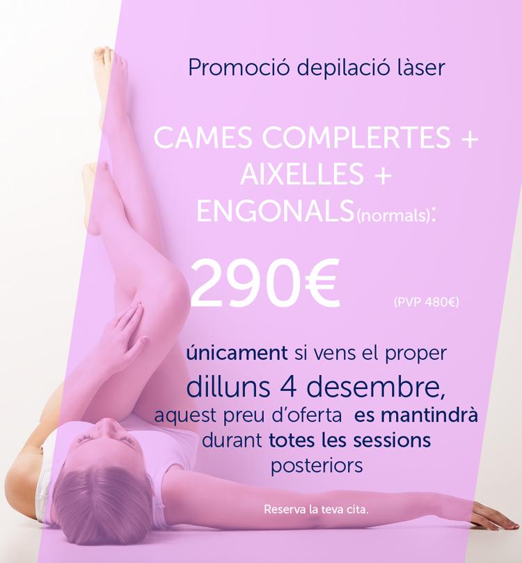 P-laser-1